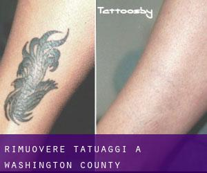 Rimuovere Tatuaggi a Washington County